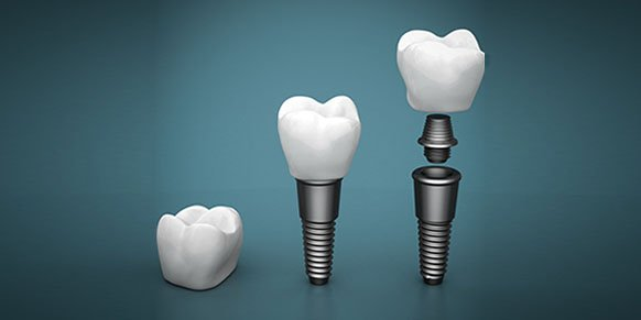 dental implants blurb