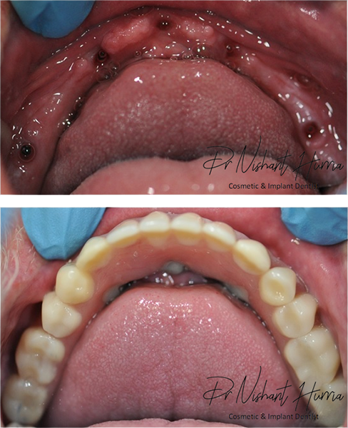 All on 5 fixed implant prosthesis